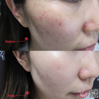 hydra boost facial