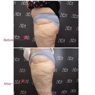 fat reduction on legs.JPG