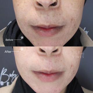 pico laser skin brightening