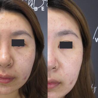 pico laser skin brighten and pigmentatio