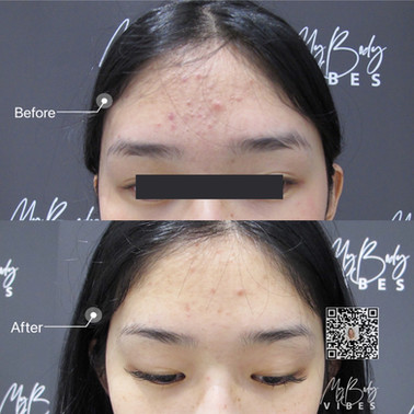 acne treatment and skin brightening with