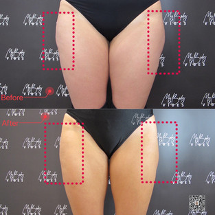 fat freezing on outer thighs