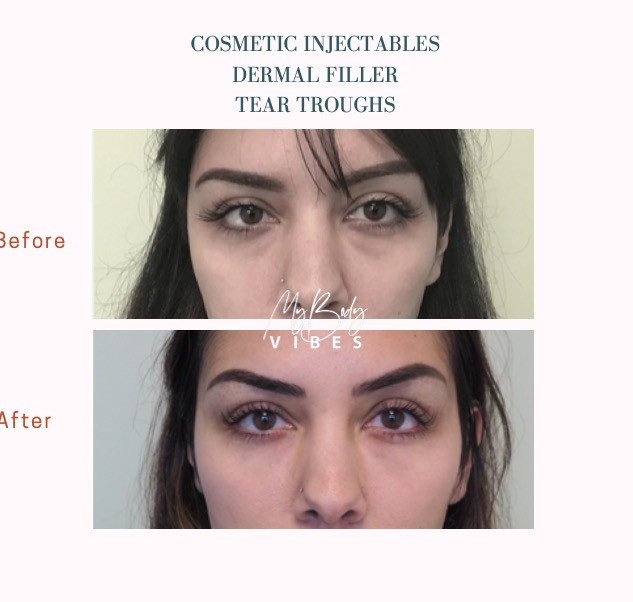 dermal filler tear troughs