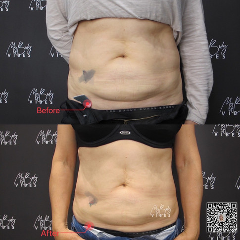 treatment abdomen