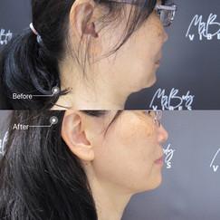 double chin reduction .jpeg