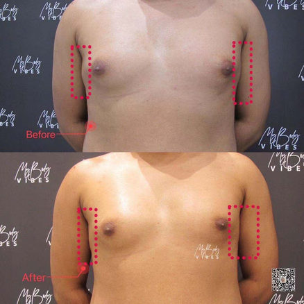 fat freezing male chest