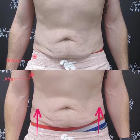 abdomen tightening