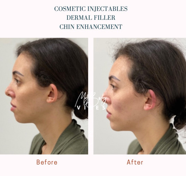 dermal filler chin enhancement