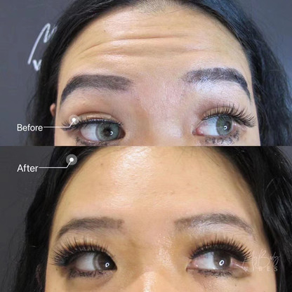 anti-wrinkle injection- forehead