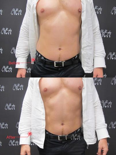 emshape on abdomen