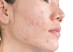 ACNE SCAR_edited.png