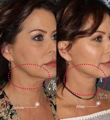double chin and lower face tightening