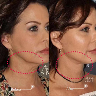 ulfit-lower face tightening