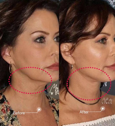lower face and double chin tightening