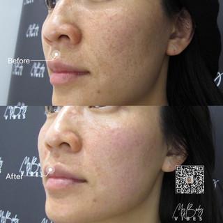 picolaser pigment removal