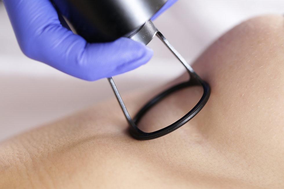Laser scar removal .jpg