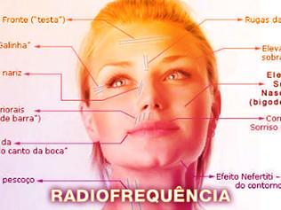 Tratamento por Radiofrequência