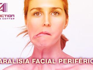 Paralisia Facial Periférica. E Agora?