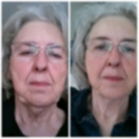 Face-Lift-4-sessions.jpg
