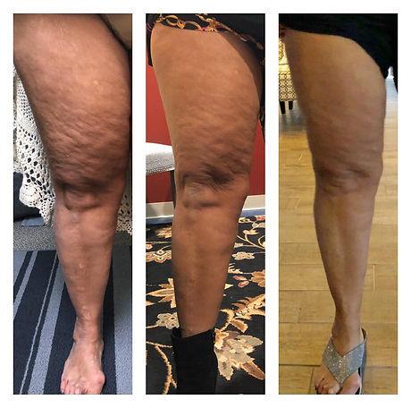 Lipo legs.jpg