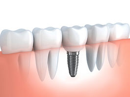 Dental-Implant2.jpg