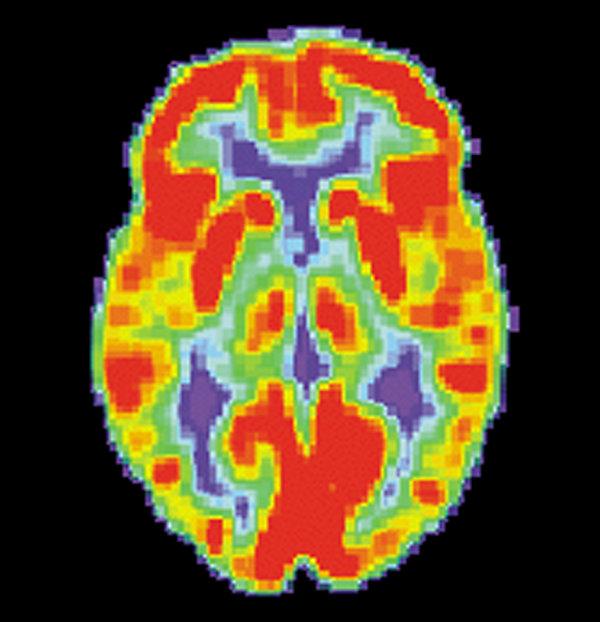 PET_Normal_brain.jpg