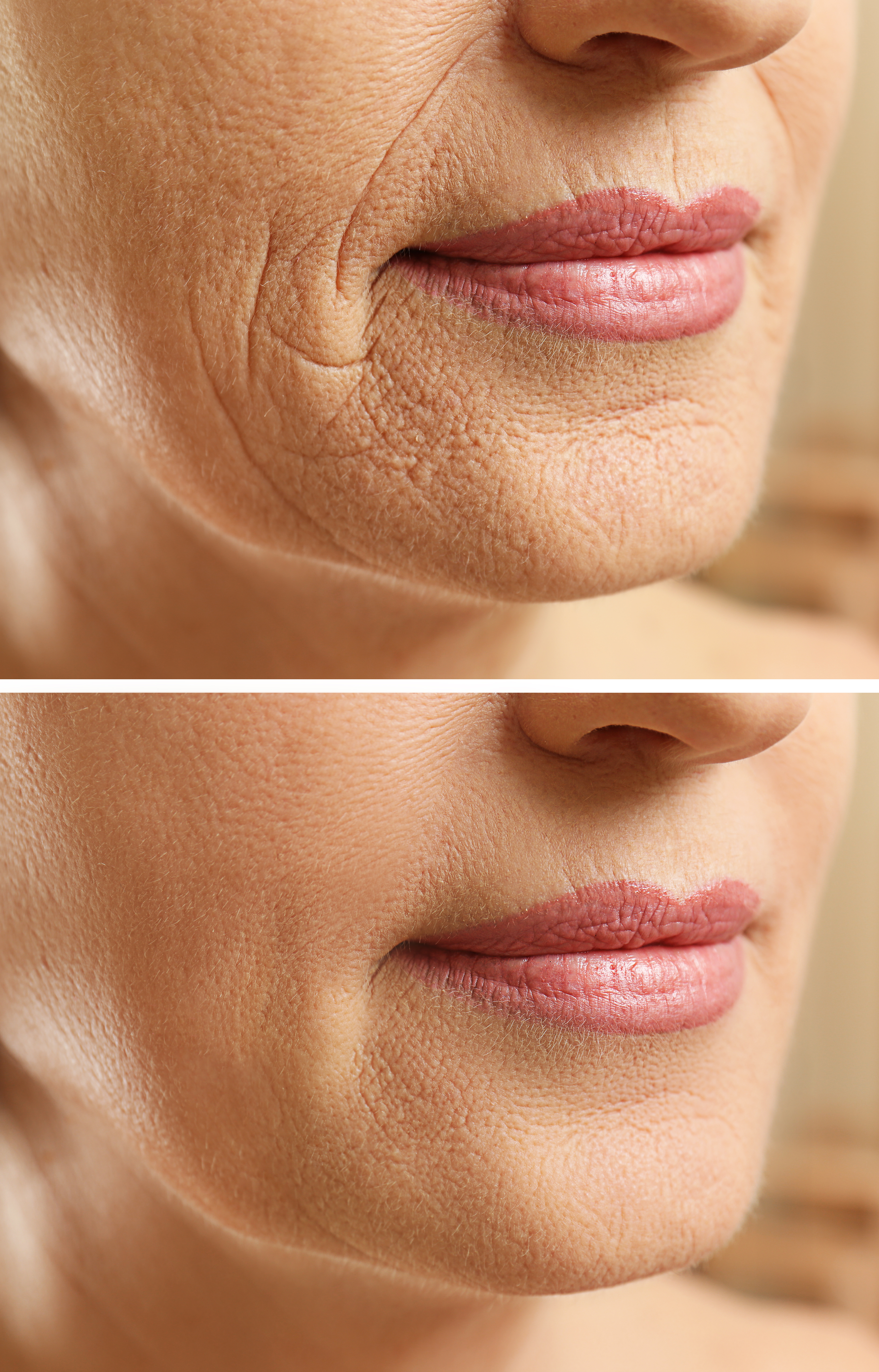 Mature woman face before and after cosmetic procedure.jpg Plastic surgery concept