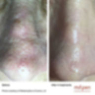 Microneedling-Before-and-After-4-nose-50