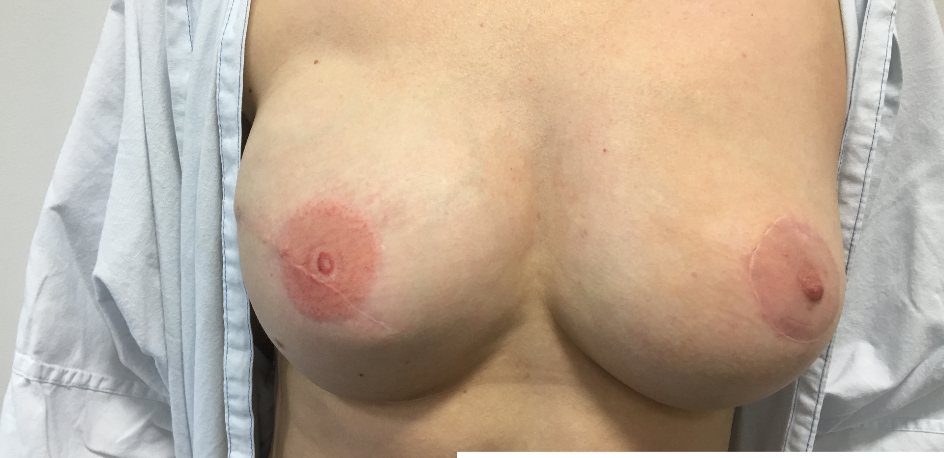 Edited Breast Folder.png