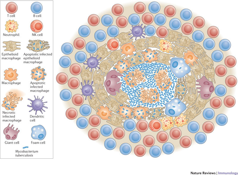 TB in lungs schematic.jpg