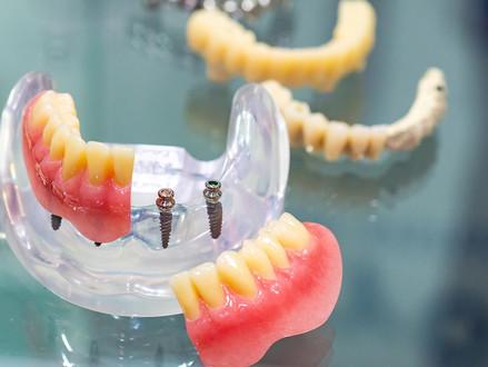 Tipos de implante dentário: saiba quais os mais usados atualmente