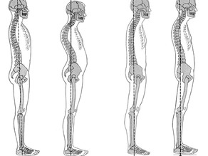 Posture Awareness - Which Standing Posture Are You?
