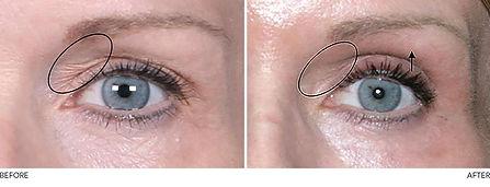 Neogen-eyelids-before-after.jpg
