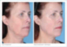 ultherapy_full_face_2-13-300x210.jpg