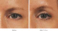 ultherapy_eyes_01.jpg