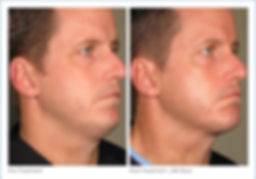ultherapy_full_face_2-12.jpg