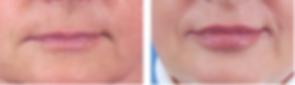 Lip-augmentation-before-253984-519580.pn