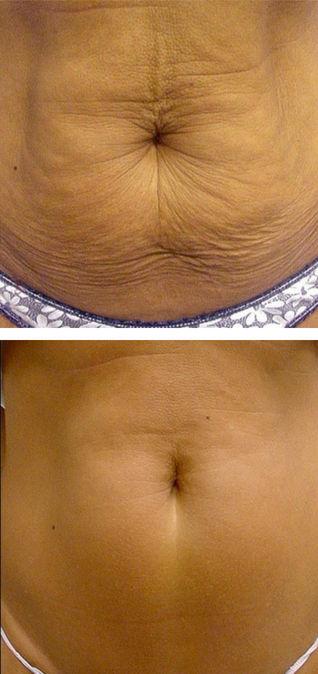 tummy1.jpg