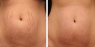 micro-needling-stretch-marks-before-and-