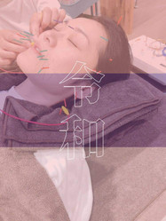 美容鍼灸 短期集中コース