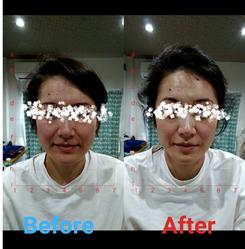 美容鍼灸 1回施術 30代女性