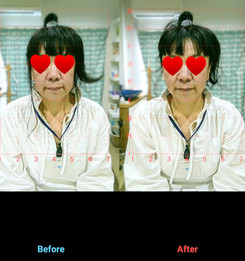 美容鍼灸 1回施術 50代女性