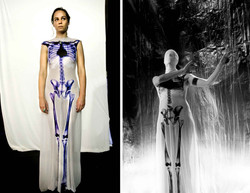 Robe anatomie