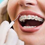 Ortodontista no Ipiranga