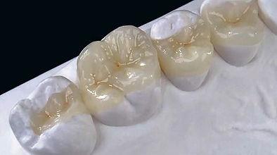 Inlay coroa onlay e overlay Dentista Ipiranga