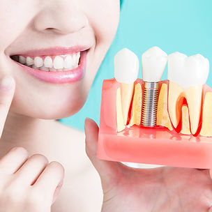what-is-a-dental-implant_edited.jpg