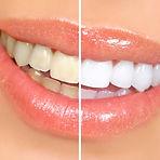 Clareamento dental no Ipiranga