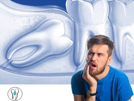 Por que fazer a extração dos dentes do siso?