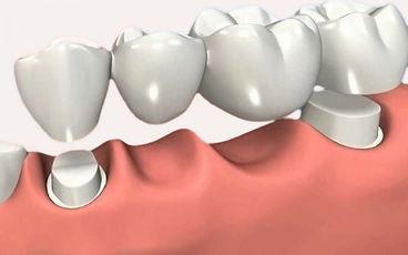 Prótese fixa Dentista Ipiranga