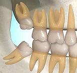 Extração dos dentes do siso